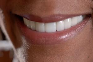 Sugar Land, TX Dentist